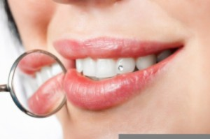 Dental implants by Dakota Dental
